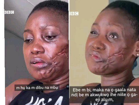 My Police Boyfriend Used His Gun To Shoot My Mouth When I Visited Him – Lady Cries Out (+Video)