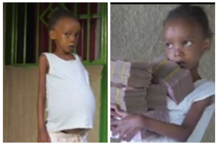6-Year-Old Girl Who People Thought Was Pregnant Because Of Her Swelling Stomach Receives Help [WATCH]